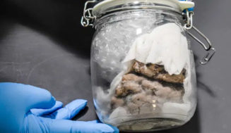 U.S. border officials find human brain in package shipped from Canada